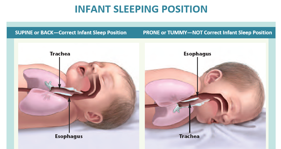 Infant Sleeping Position
